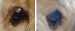 図10 右眼:白内障、左眼:シリコン挿入術